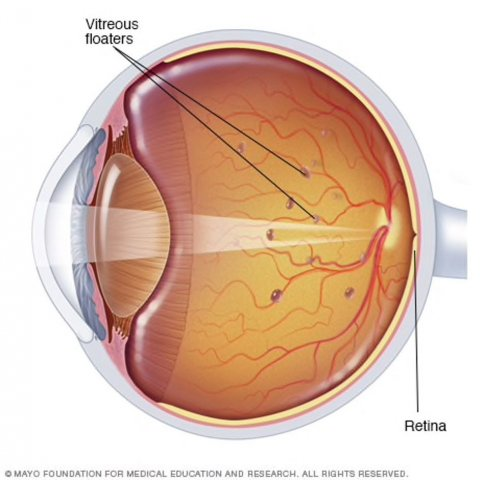 Eye Floaters vitreous